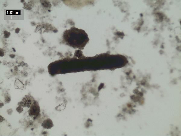 Brine_shrimp_fecal_pellet-600.jpg